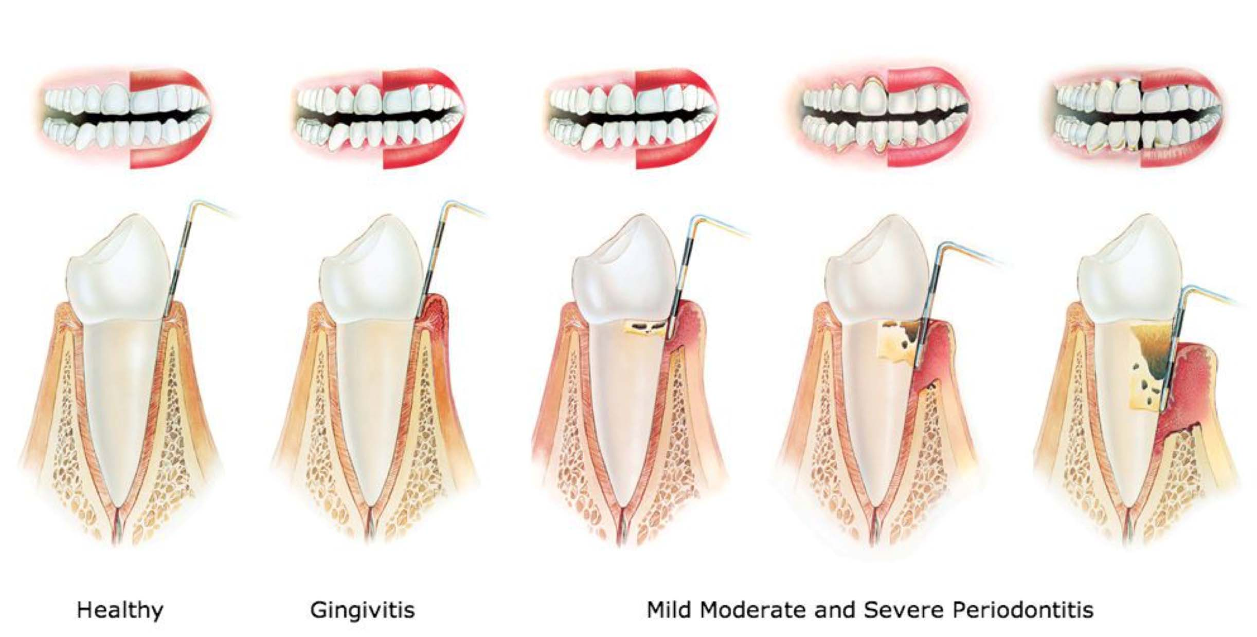 illustration of healthy gums and gingivitis